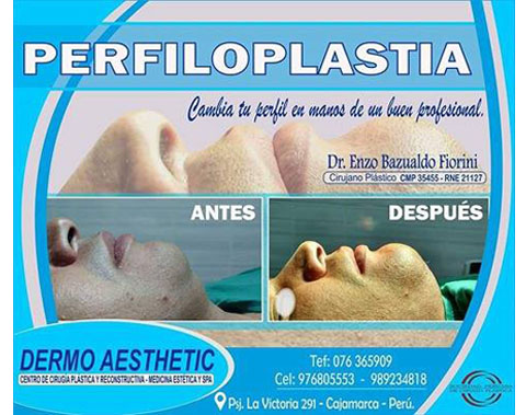 implantes_faciales_dermo_aesthetic2.jpg