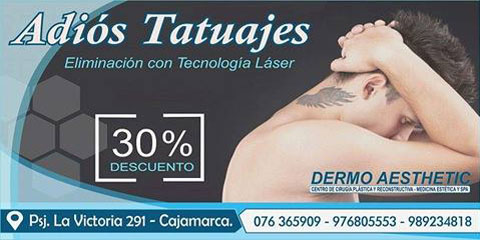 borrado_de_tatuaje1.jpg