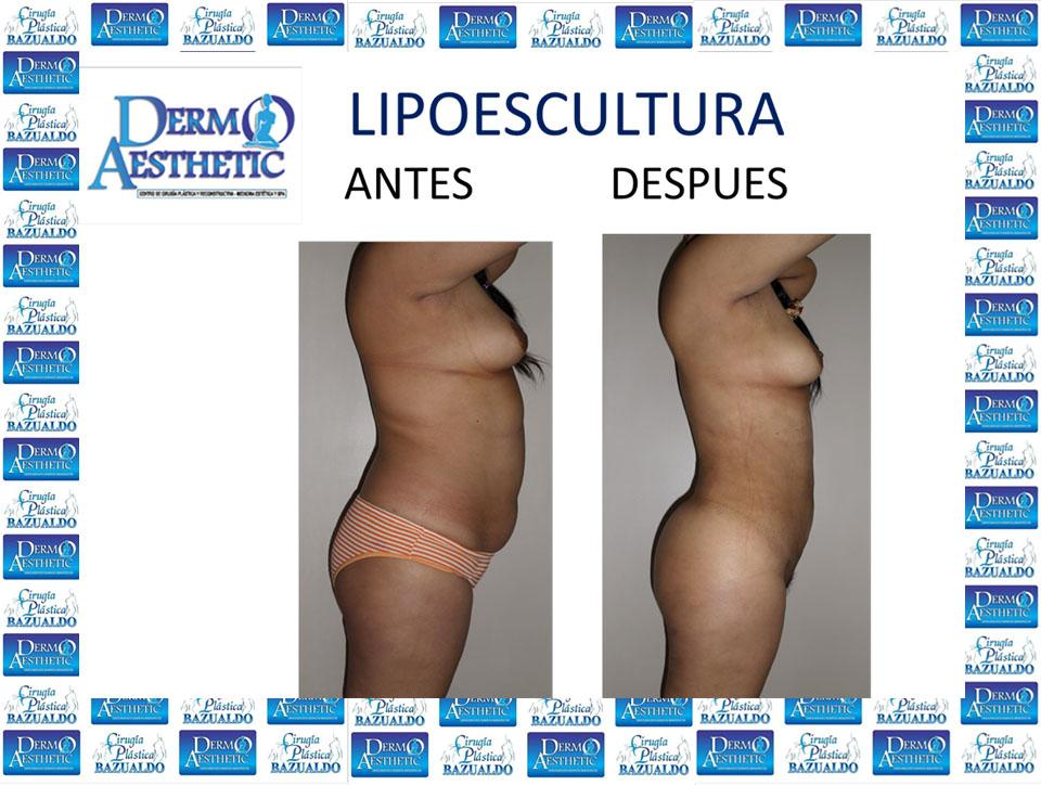 Lipoescultura-31.jpg
