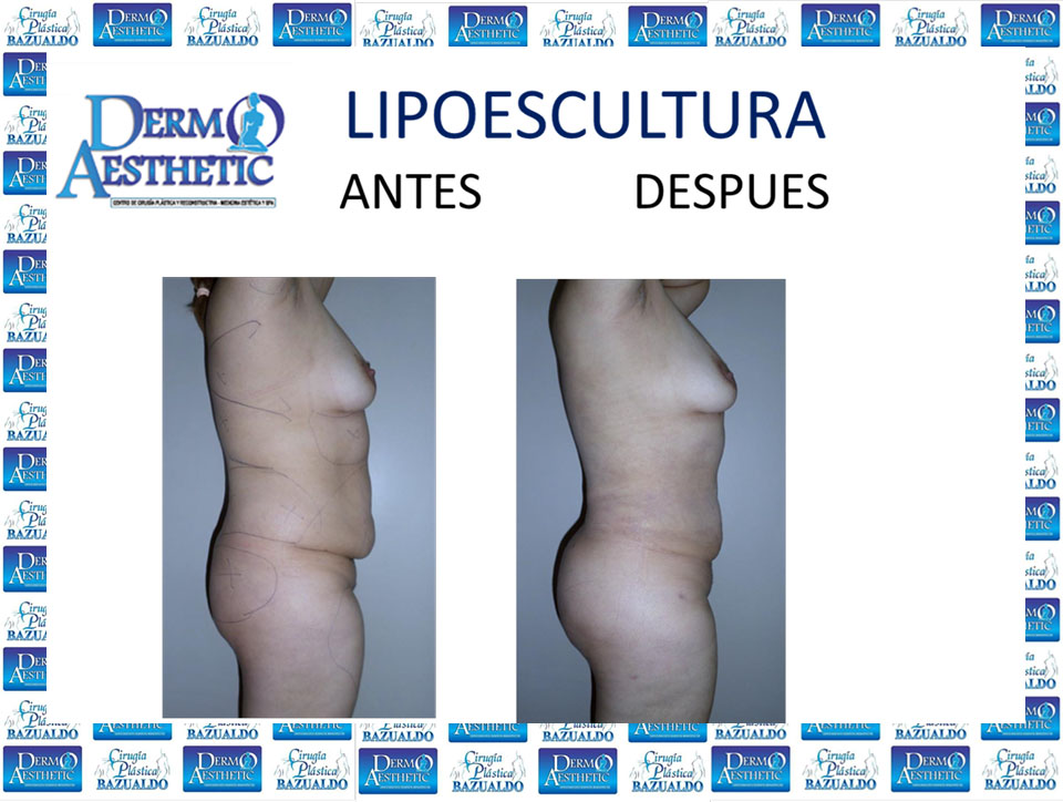 Lipoescultura-64.jpg
