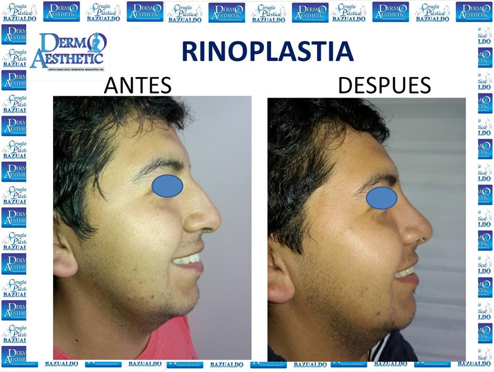 rinoplastia10.jpg