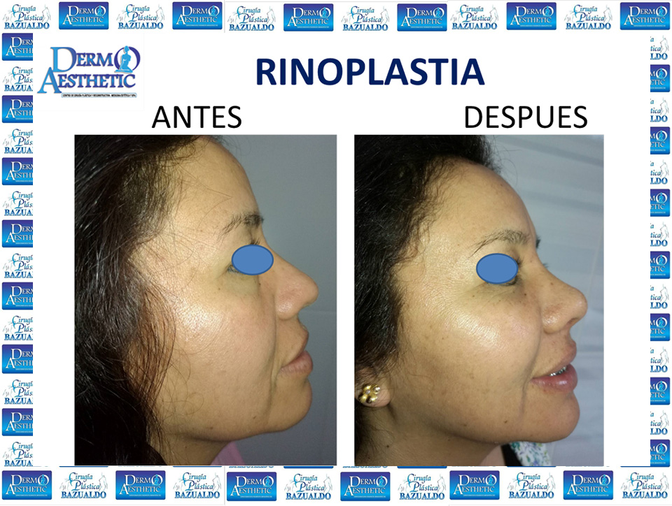 rinoplastia11.jpg