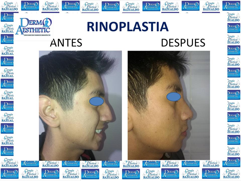 rinoplastia4.jpg
