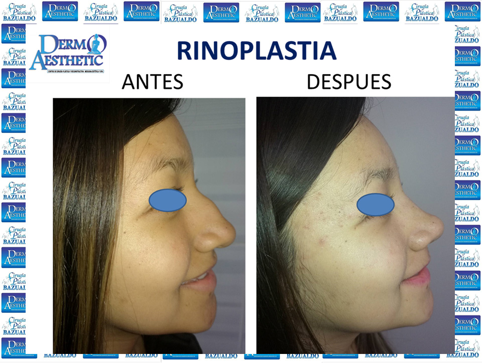 rinoplastia5.jpg