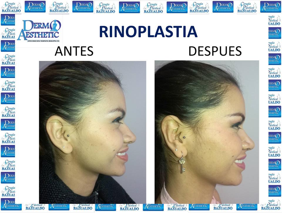 rinoplastia7.jpg