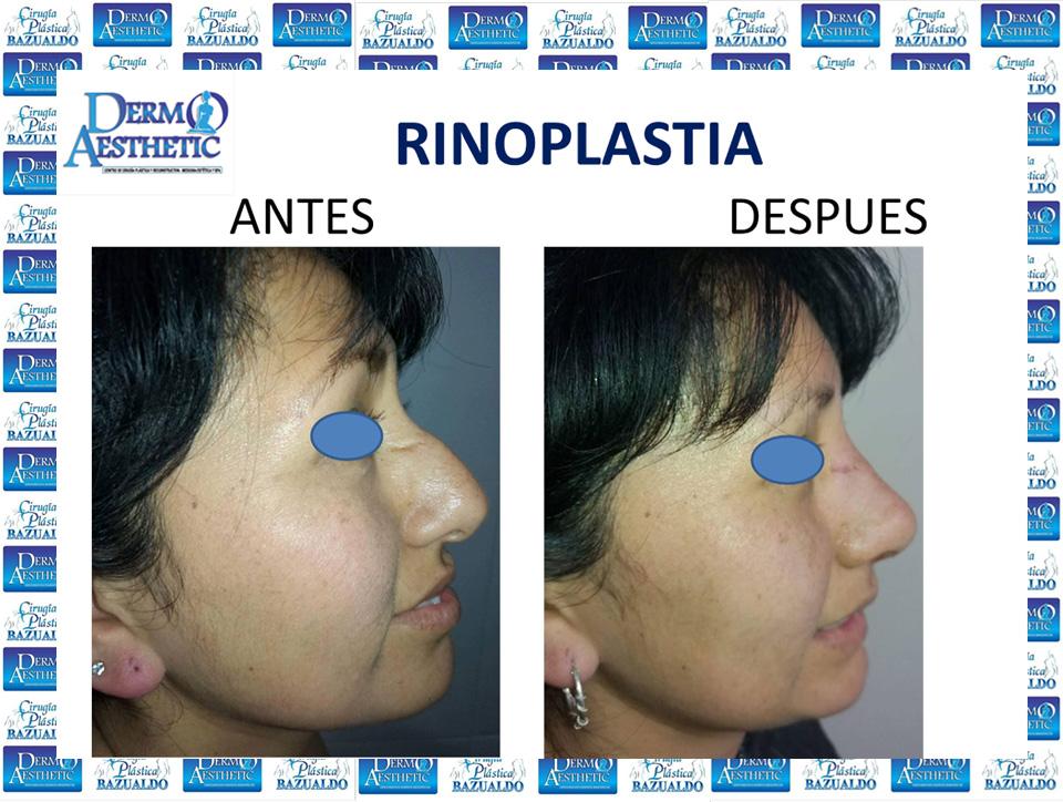 rinoplastia9.jpg